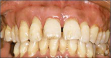 Paciente con una afección periodontal