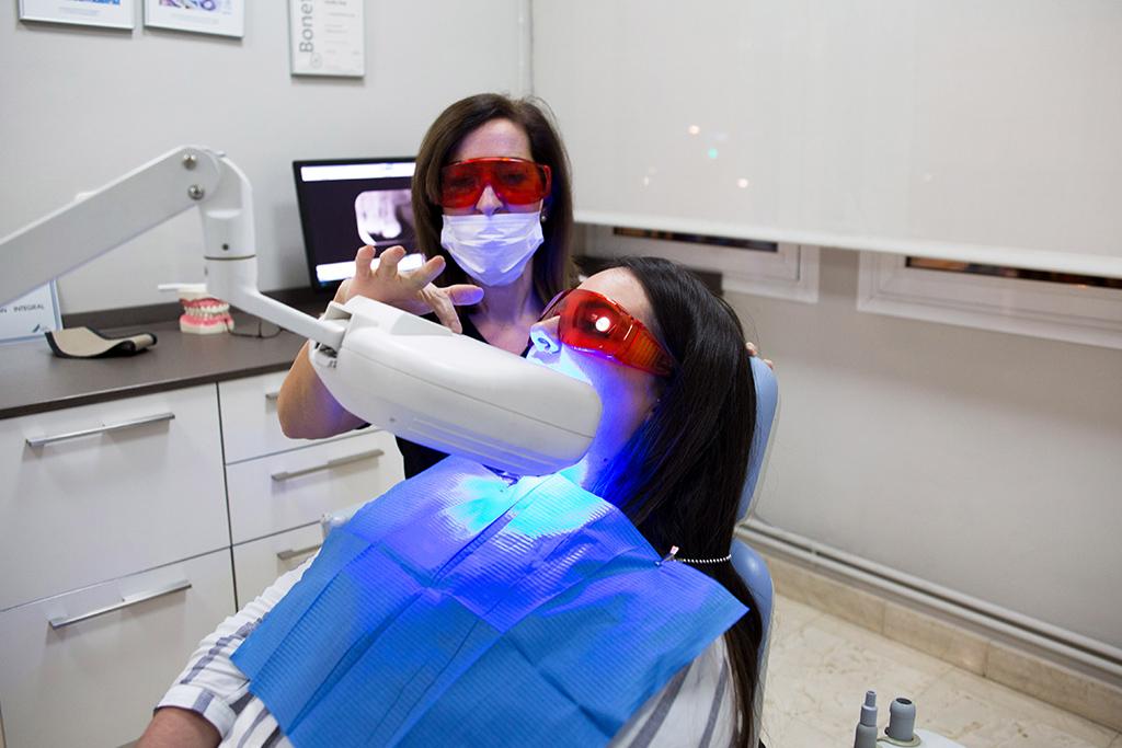 Aplicación de un blanqueamiento dental en clínica de Albacete