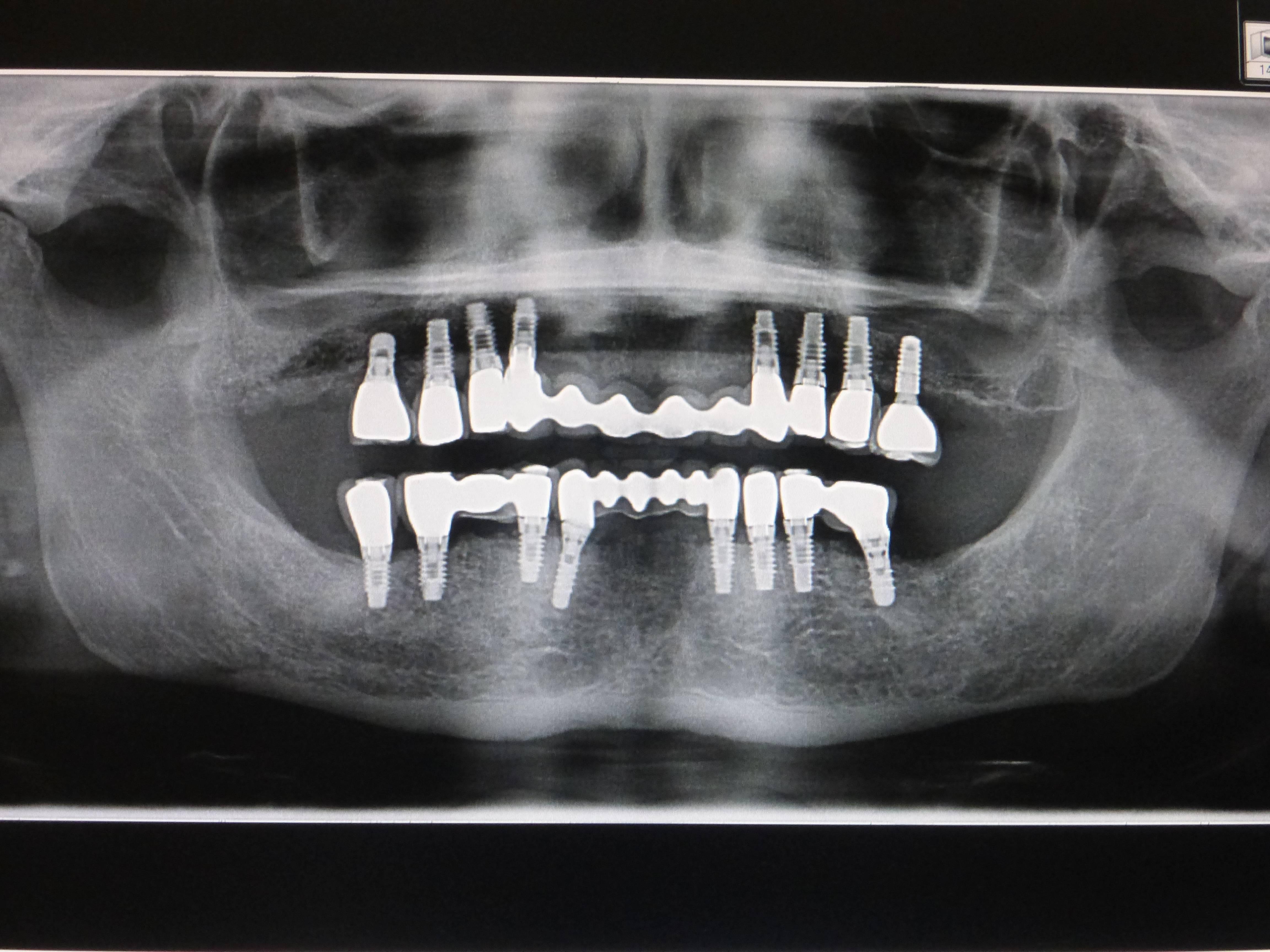 Radiografía digital de implantes dentales realizados a un paciente en nuestra clínica dental de Albacete