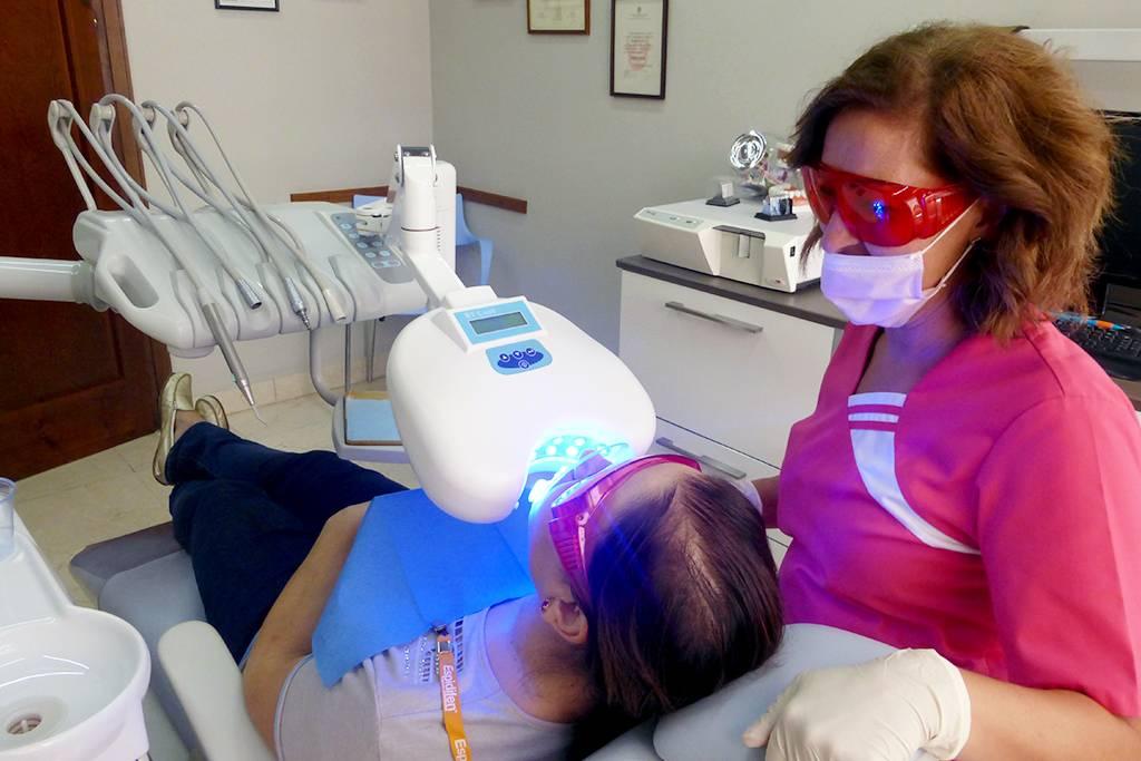 Proceso de blanqueamiento dental a una paciente