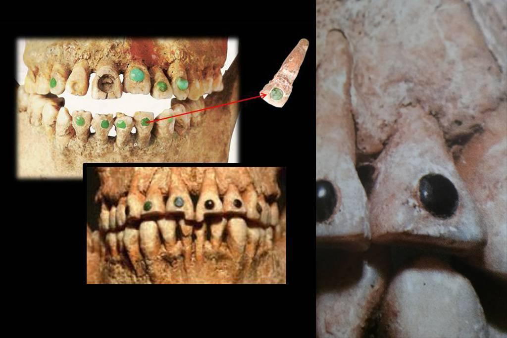 Sabias que… Los mayas realizaban incrustaciones de piedras preciosas en los dientes