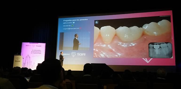 IX Congreso en implantología MozoGrau