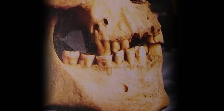odontologioa-egipto-craneo