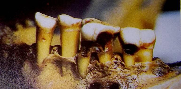 odontologioa-egipto-dientes