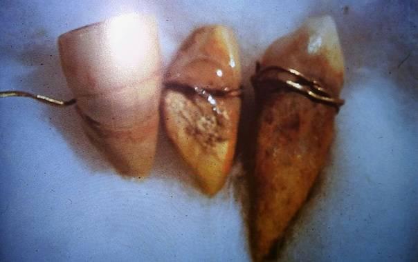 tres dientes unidos con alambre de oro