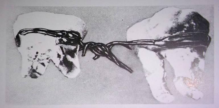 dos muelas unidas por alambre de oro