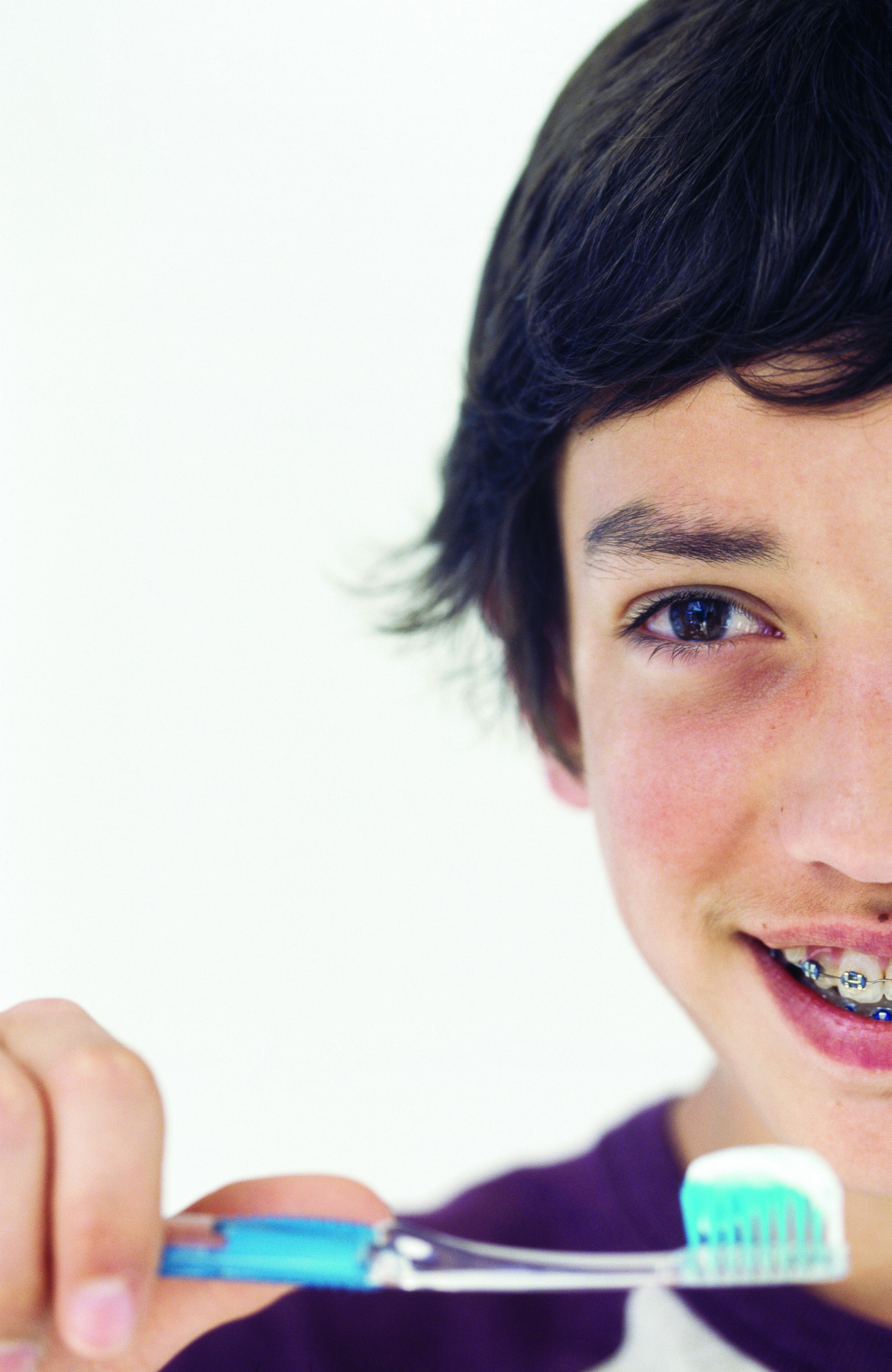 Ortodoncia en dos fases para niños