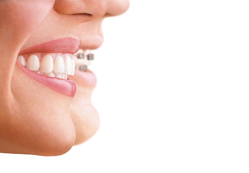 Ortodoncia para diseñar sonrisas