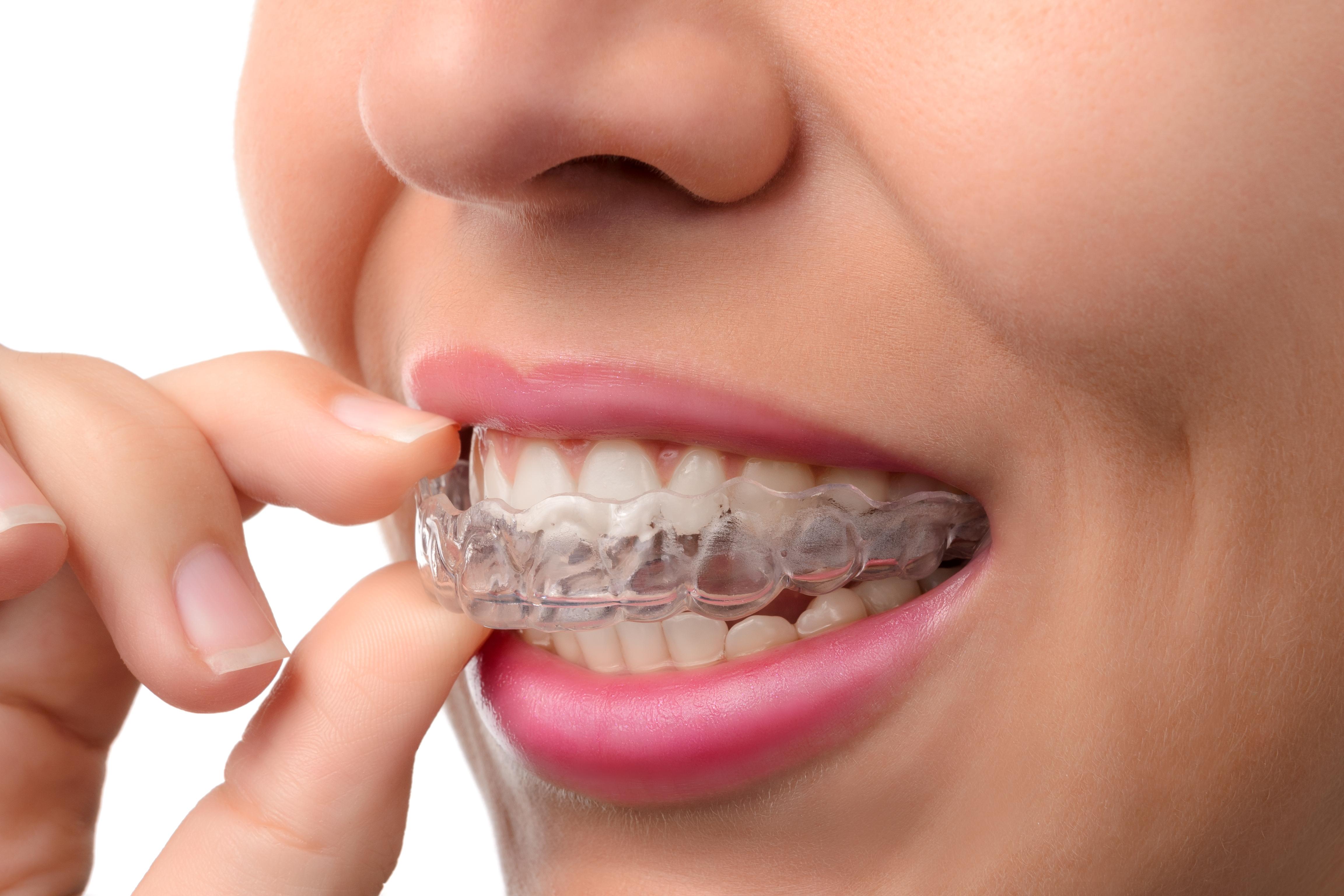 Todo lo que debes saber sobre la Ortodoncia Invisible