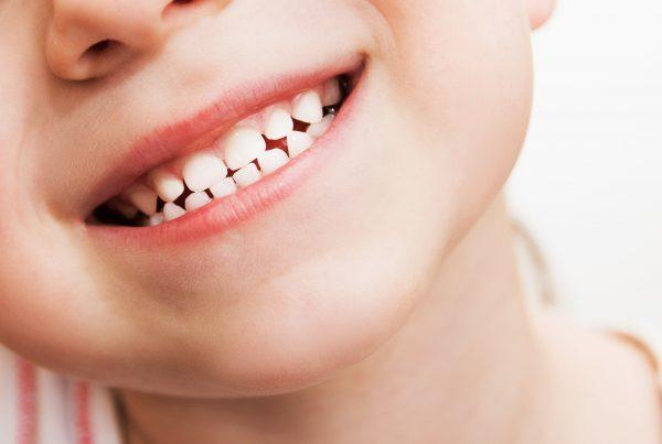 Cómo cuidar de la sonrisa de los más pequeños?
