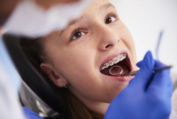 Cómo saber si tus hijos necesitan un tratamiento de ortodoncia