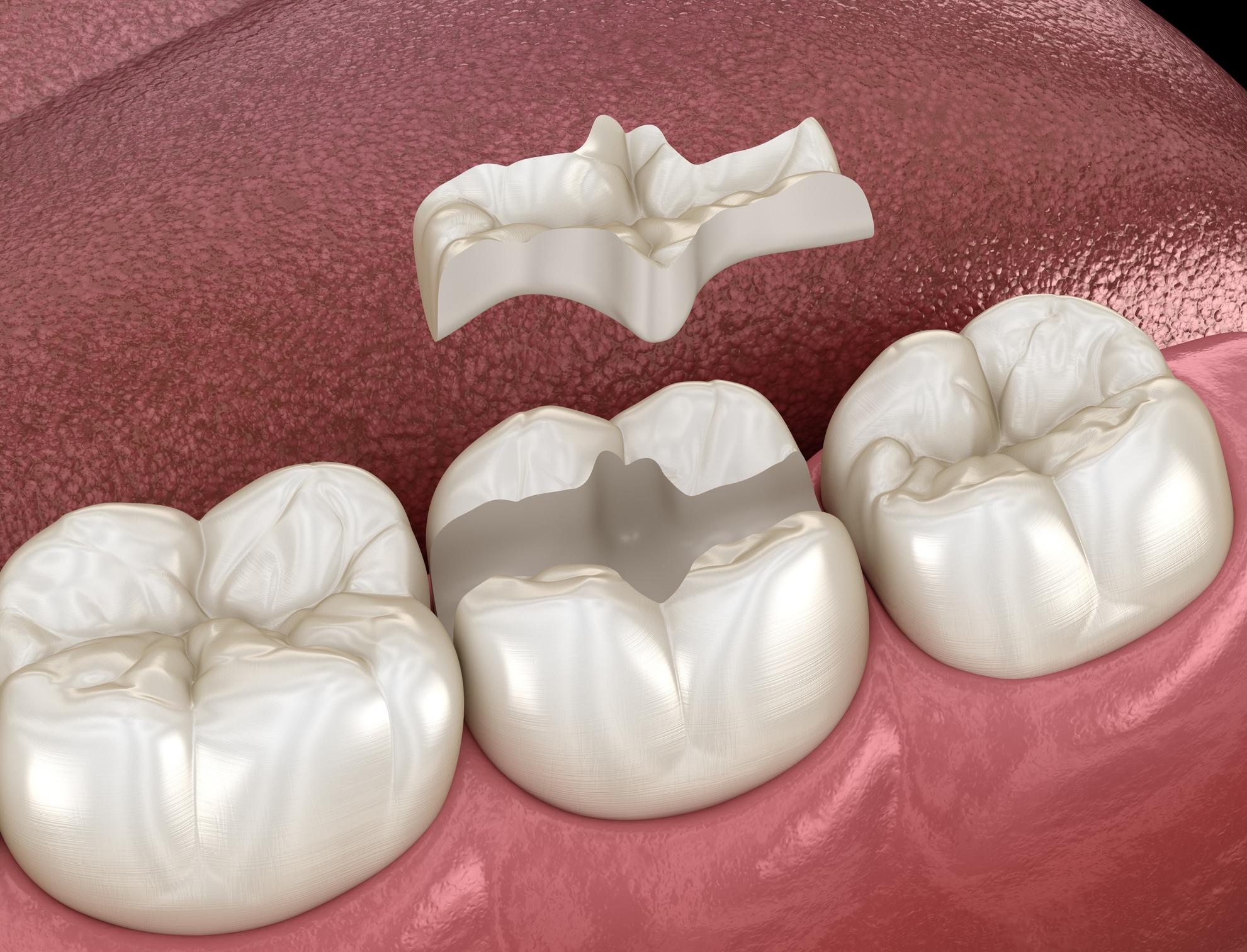 incrustaciones dentales