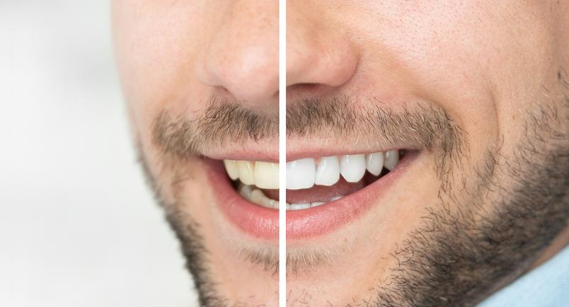 Blanqueamiento dental: consigue una sonrisa más blanca